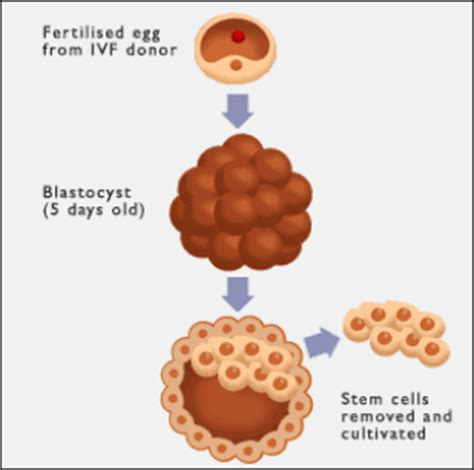 Stem Cell Research: Free Expository Essay Samples and Examples